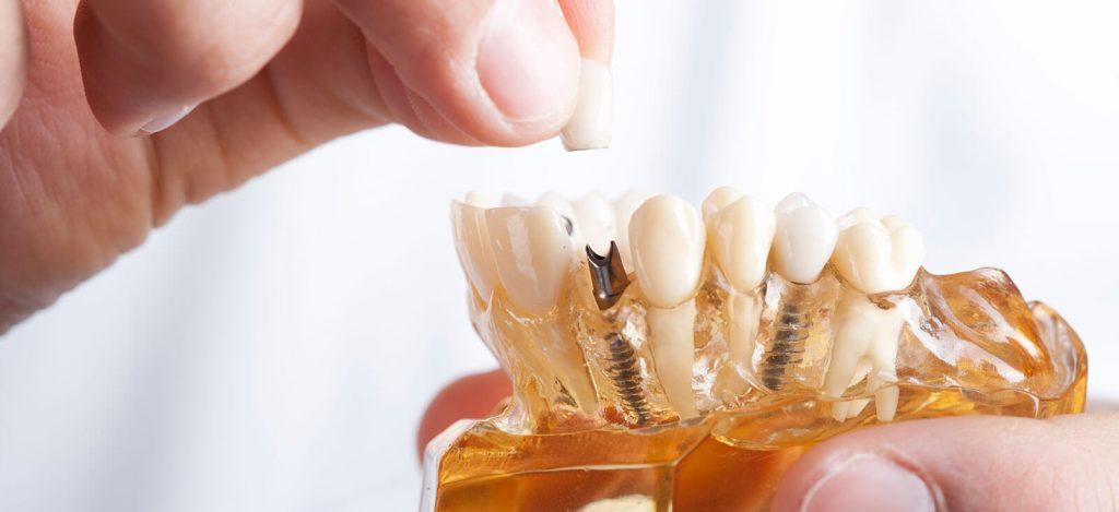 So sehen Zahnimplantate aus