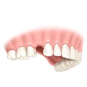Untersuchung ob Knochenaufbau für Zahnimplantat nötig ist
