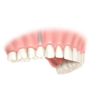 Einsetzen der Krone - Zahnimplantat