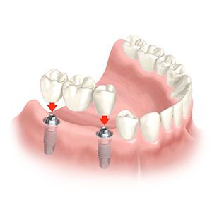 Implantation der künstlichen Zahnwurzeln