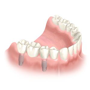 Einsetzen der Brücke - Zahnimplantate