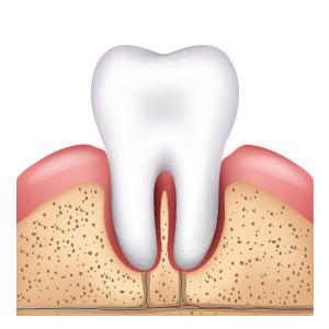 Rückgang des Zahnfleisches bei Parodontitis