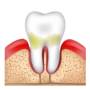 Zahnfleischtaschen bilden sich bei Paradontitis