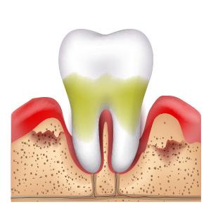 Zähne verlieren halt bei Paradontose