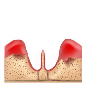 Zahnverlust bei Parodontitis