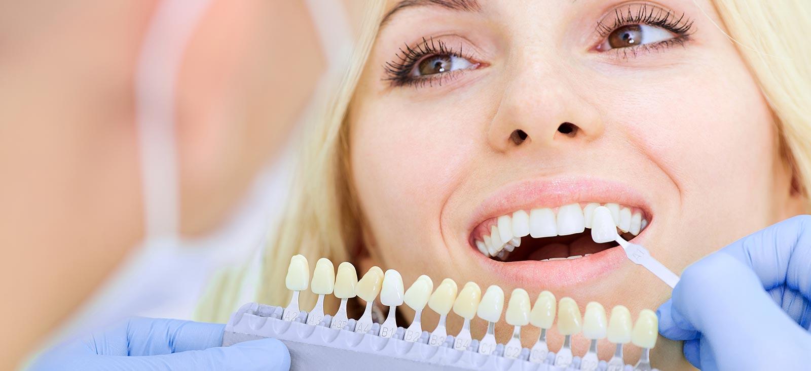 Zähne aufhellen - Zahnfarbe bestimmen