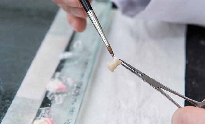 Die Zahntechnik in Stuttgart bietet eine umfangreiche Materialvielfalt
